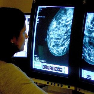 Breast screening is currently routinely offered to women in their late 40s until they are 73