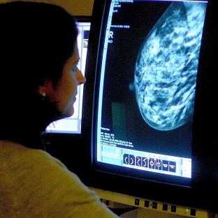 Hundreds of poor women are dying needlessly from breast cancer each year, say researchers