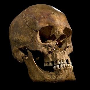 Andover Advertiser: The skull of King Richard III, as distant relatives await a ruling over where the monarch's remains should be reburied