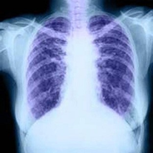 Diagnosis trial over lung condition